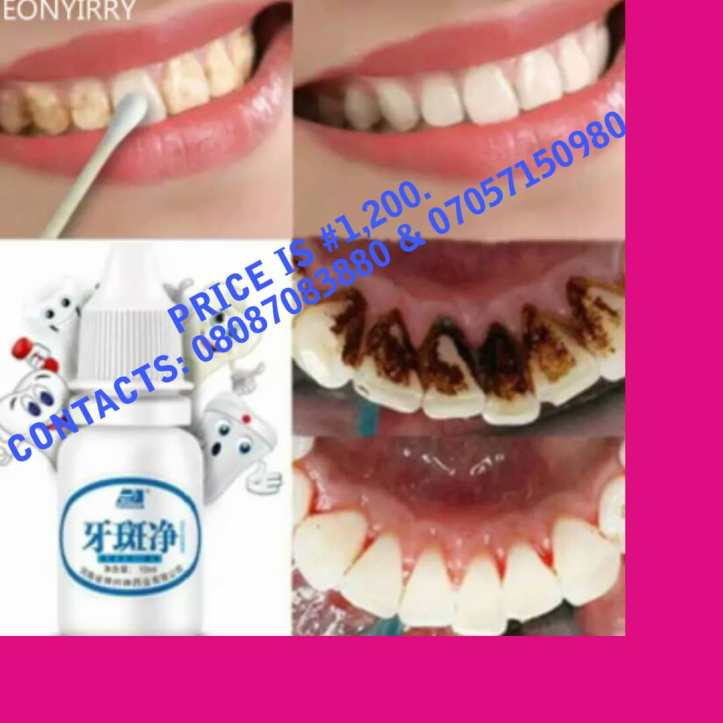 TEETH WHITENING LIQUID.IT MAKES YOUR TEETH LOOK GLOSSY